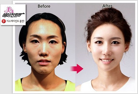 Before and After: Startling Cosmetic Surgery Images from South Korea