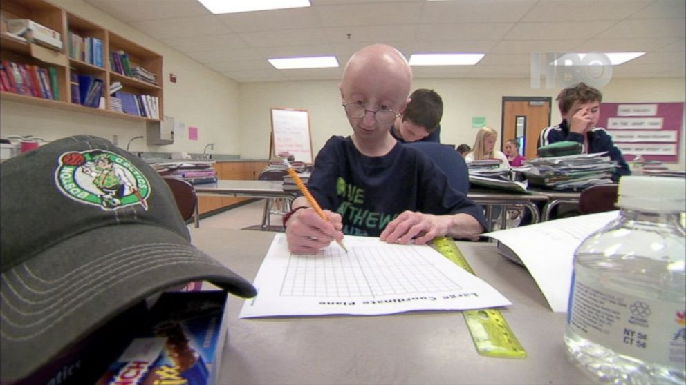 Progeria the 80-Year-Old Children