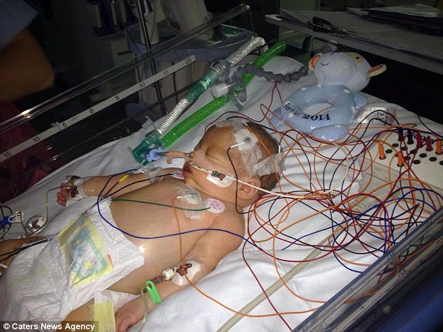 this super cute baby had a heart attack at 2 days old! But he has made a full recover after doctors said he might never wake up Joshua Arndt-Skyrme