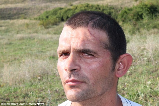 Romanian builder who lost half of his skull in a work accident has his head rebuilt