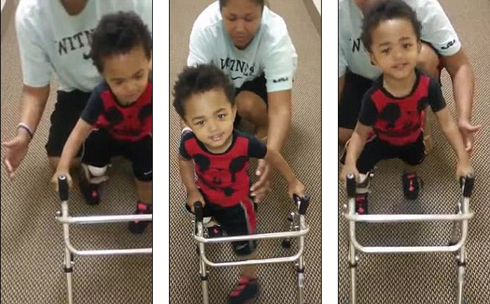 A Two-year-old Amputee Kayden Elijah Walks For The First Time