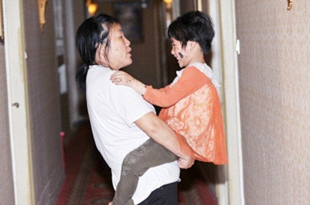 a-six-year-old-girl-grows-black-fur-all-over-her-back