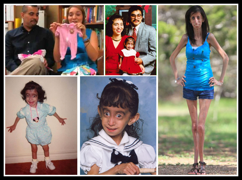 the ugliest woman in the world  beautiful in her own way  Lizzie Velasquez