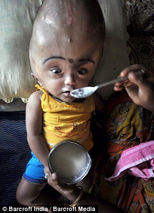three-year-old with an extreme form of hydrocephalus Roona Begum India