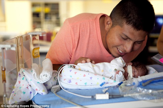 capturing hopes photography: the very first moments of premature babies.