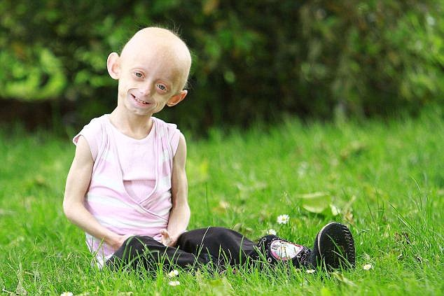 Ashanti suffers from rare disease Hutchinson Gilford Progeria which causes accelerated ageing